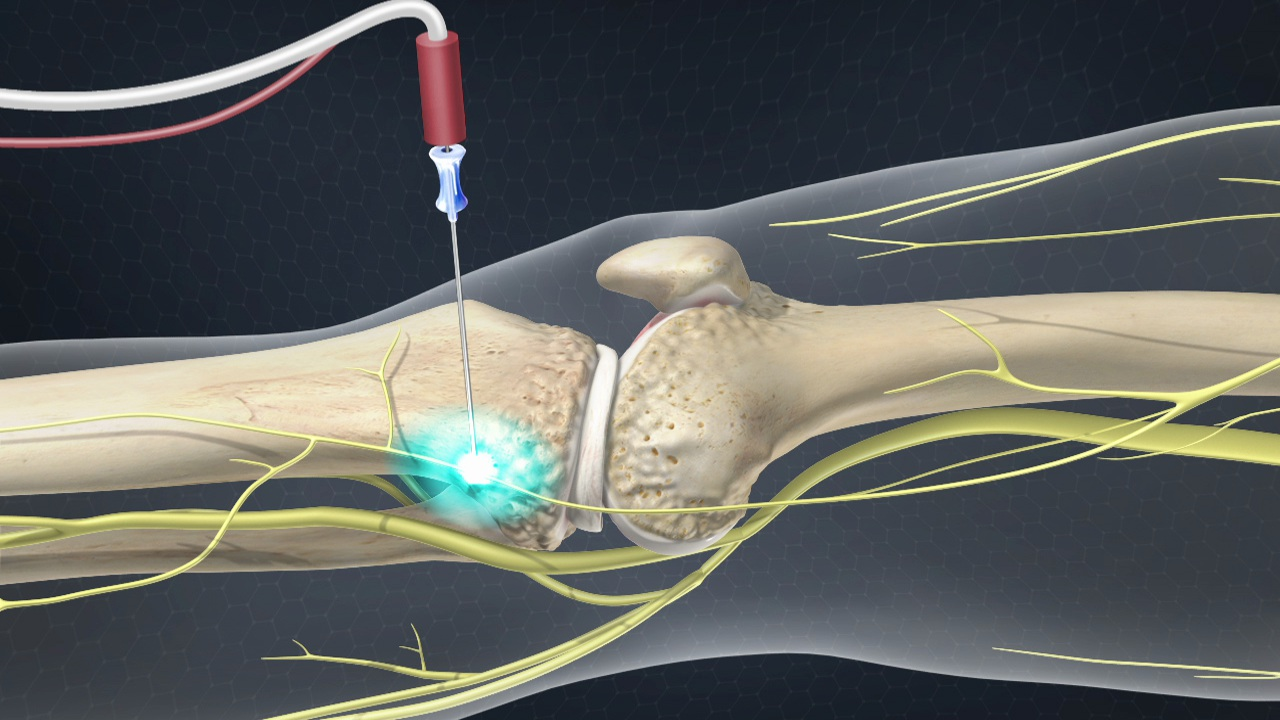 Cooled Radiofrequency Ablation